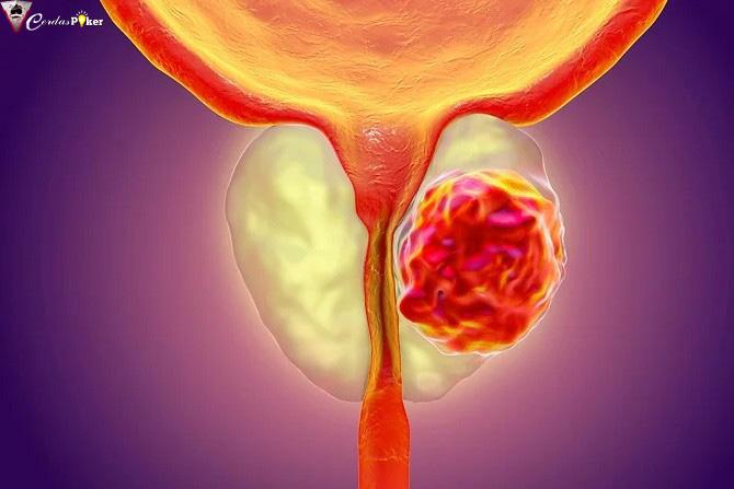 Deteksi Dini Kanker Prostat Bisa Selamatkan Pasien, Ini Pengobatannya