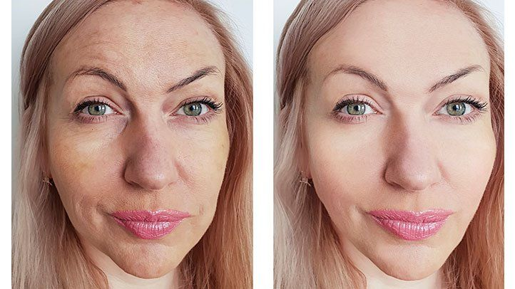 Skincare Regimens Not Working? Try Laser Resurfacing