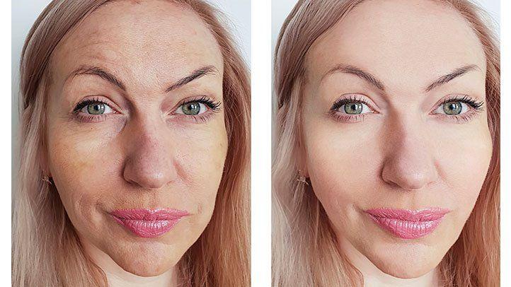 Skincare Regimens Not Working? Try Laser Resurfacing