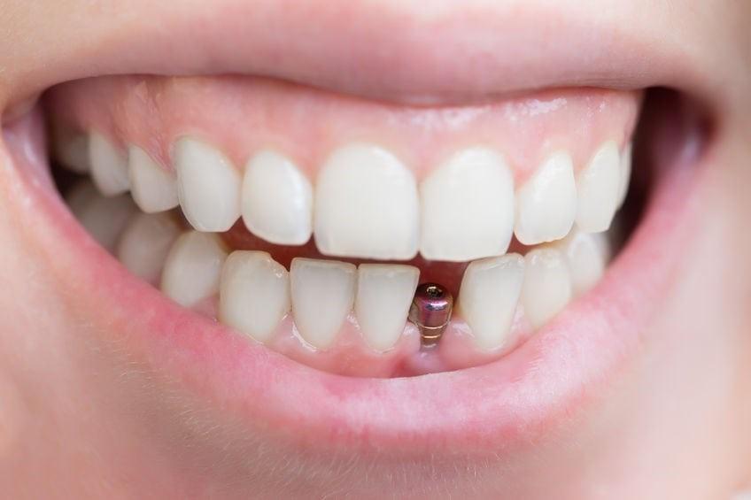 An Ultimate Guide to Dental Implants (Implantes Dentales En Querétaro)