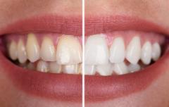 Teeth-Whitening-in-Melbourne