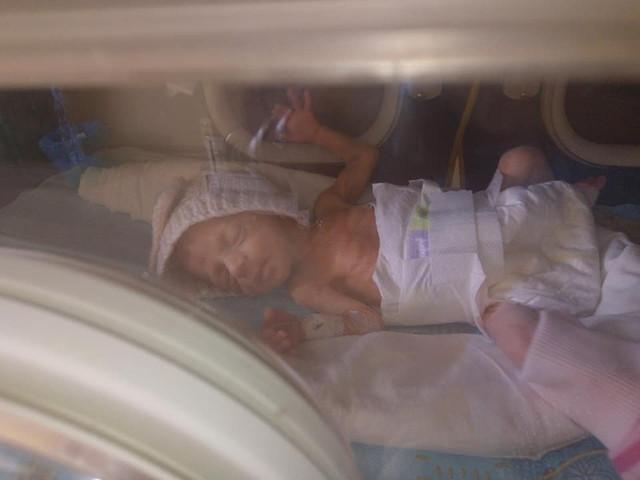 Девочка из Николаева нуждается в средствах на лечение