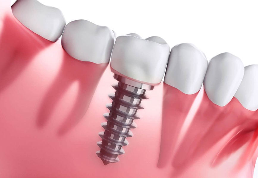 dental-implant-cost-2