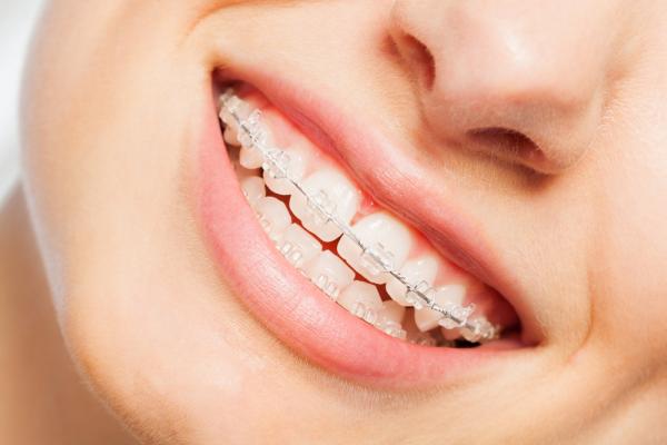 Niềng răng trong suốt Invitech và những điều cần biết 144