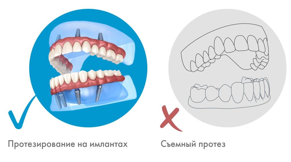 Съемный протез или протезирование на имплантах 2