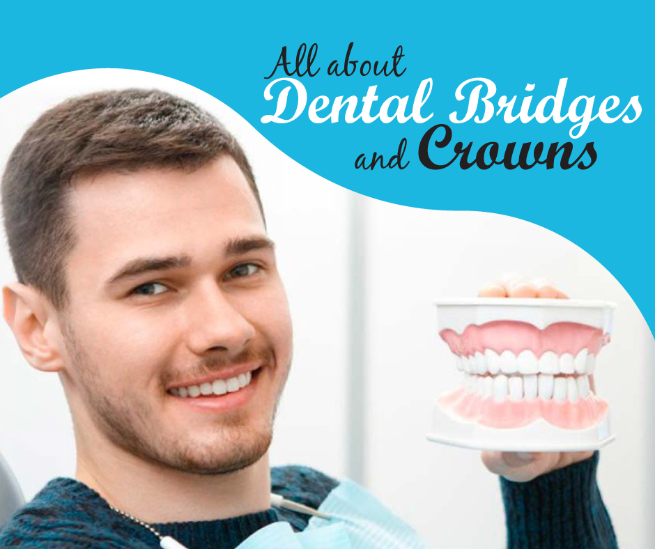 All About Dental Bridges and Crowns