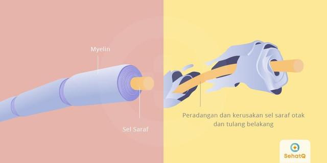 [Image: multiple-sclerosis-1550562878.jpg]