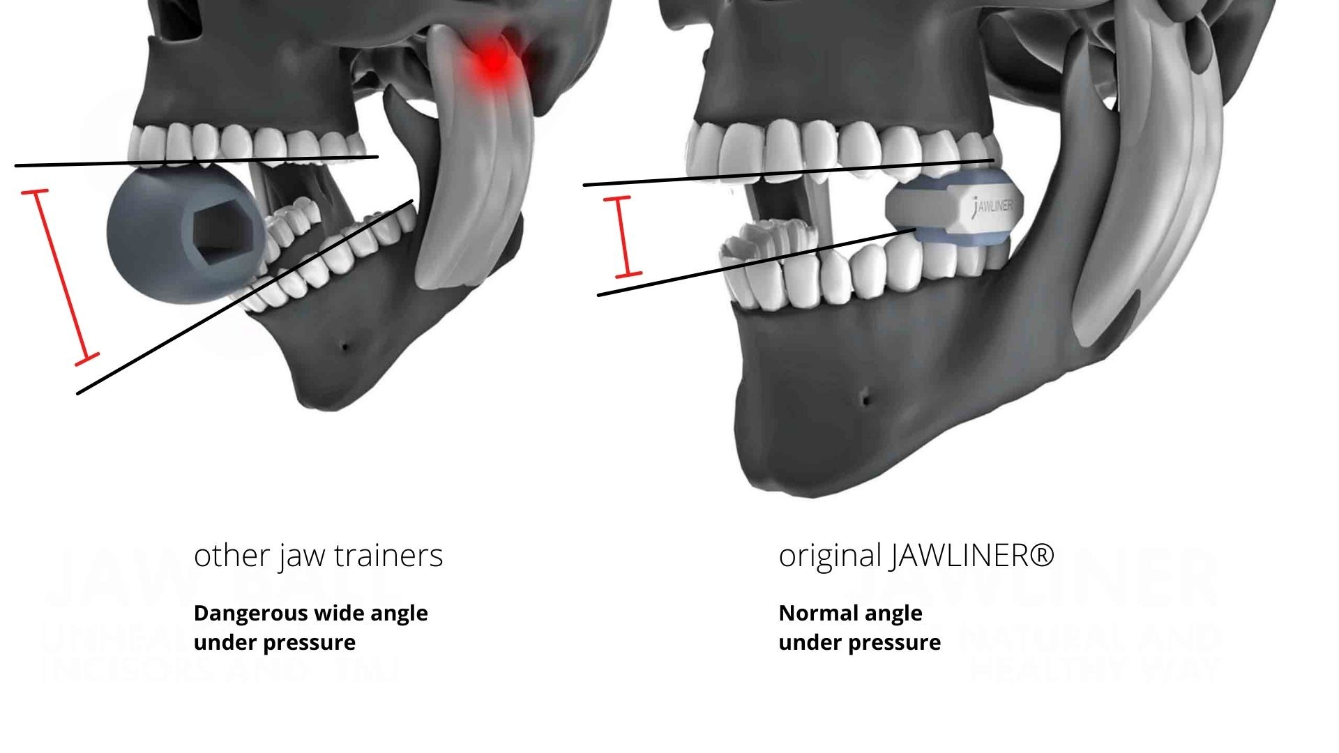 the-jaw-trainer-jawliner-vs-the-unhealthy-jaw-trainer-leik-jawzrsize