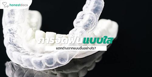key-1-Invisalign-tooth