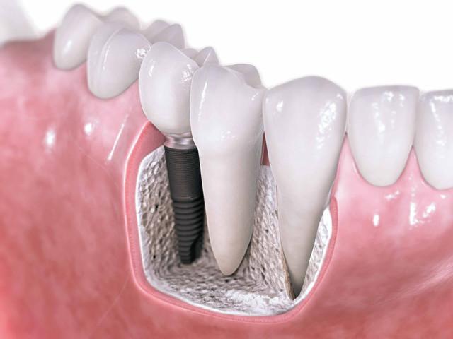 1367050891-dental-implants