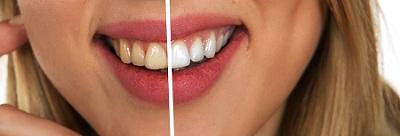cosmetic-dentist-in-Parramatta