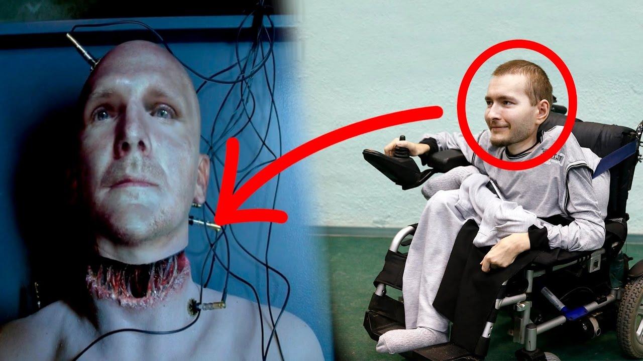 trasplante-cabeza-humana