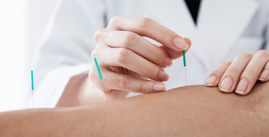 What Is Acupuncture And How Will This Therapy Benefit You?