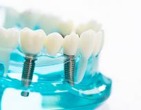 Dental-Implants-Cost-Sydney