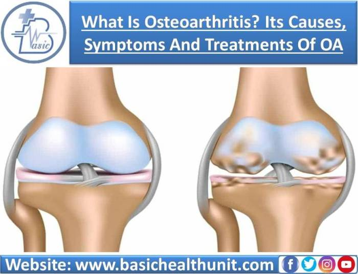 What Is Osteoarthritis? Its Causes, Symptoms, Diagnosis And Treatments