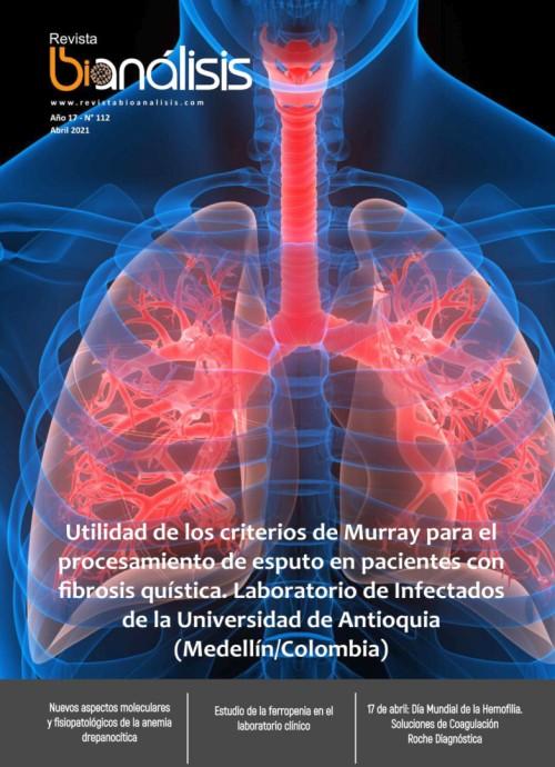 [Imagen: Revista-Bioan-lisis-abril-2021.jpg]