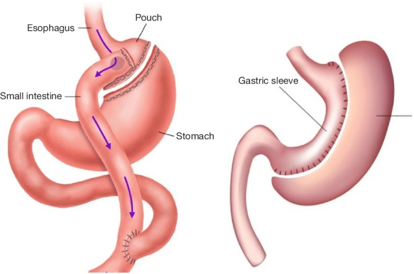 Laparoscopic-Mini-Gastric-Bypass