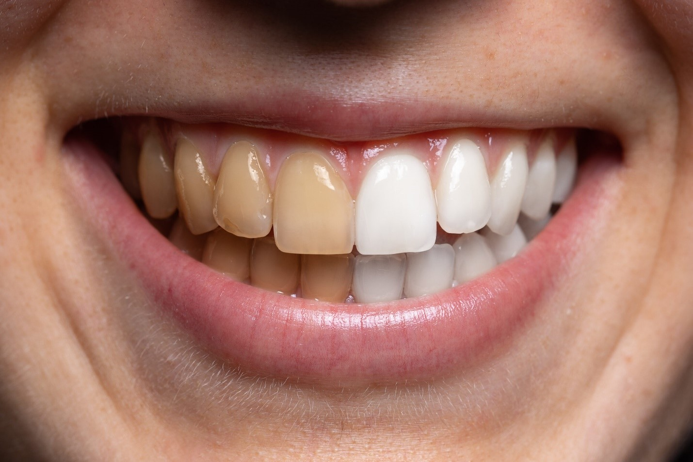 Conditions Which Necessities Teeth Whitening Treatment
