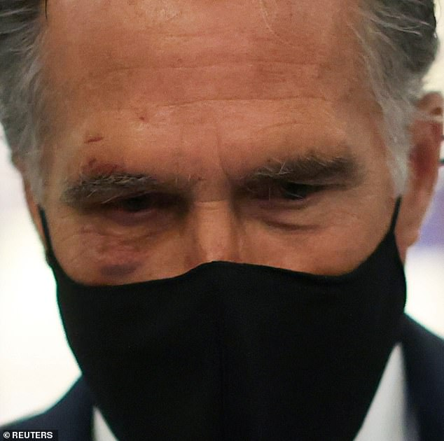 39927636-9314925-Mitt-Romney-was-sporting-a-very-visible-black-eye-on-Monday-at-t-m-7-1614672106869