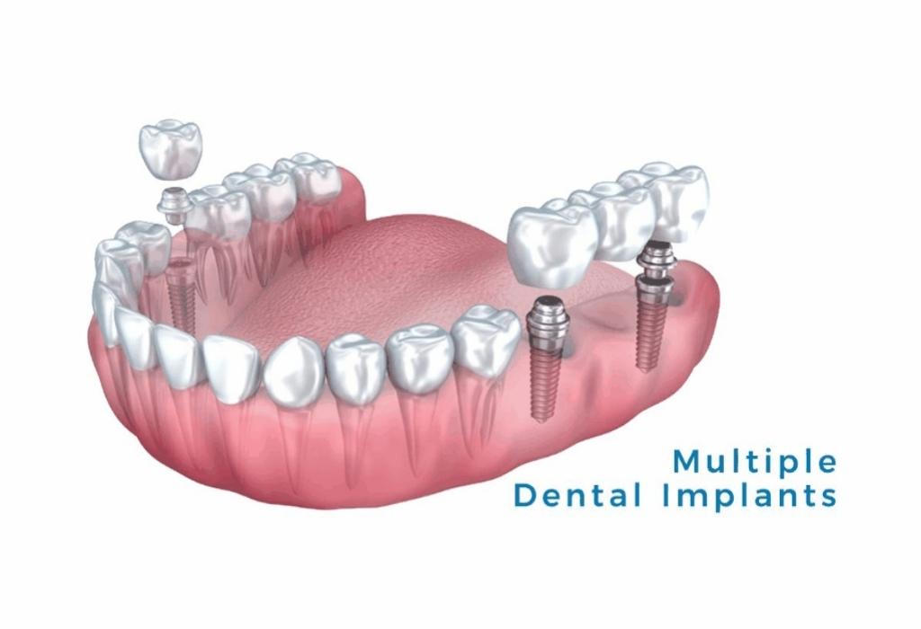 Human Dental Care HeartBeats