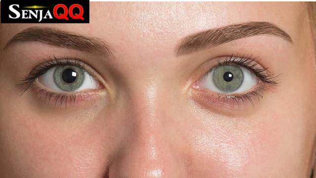 Pupil Lebih Kecil Hingga Wajah Tak Berkeringat, Gejala Sindrom Horner?
