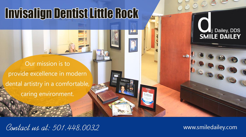 Invisalign-Dentist-Little-Rock — imgbb com