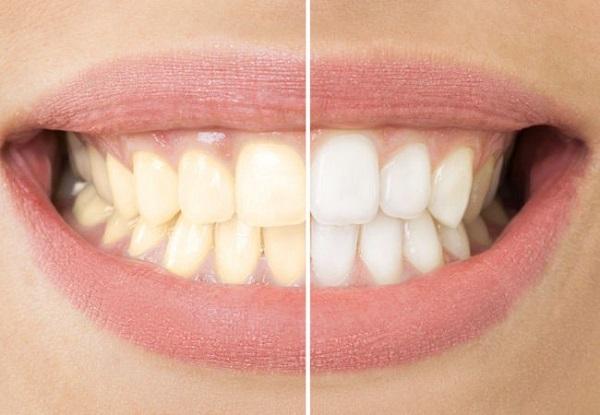 Tẩy trắng răng bao nhiêu tiền ở Cần Thơ