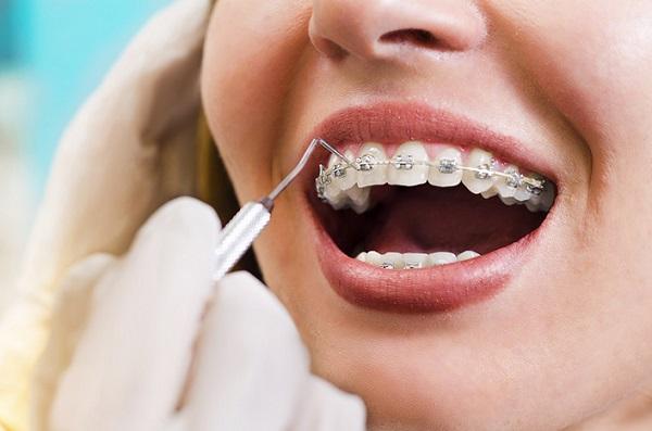 Hình ảnh niềng răng đẹp từ khách hàng thực tế 157