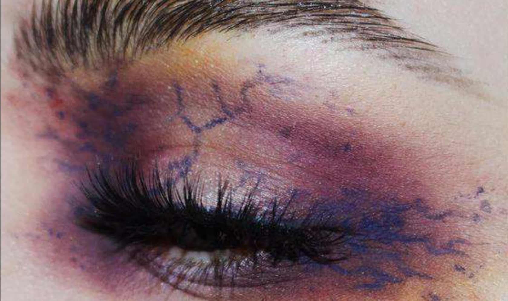 ABH-halloween-bruising