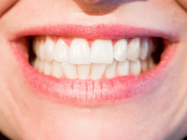 woman-white-female-care-professional-medicine-health-facial-expression-lip-smile-mouth-close-up-dent