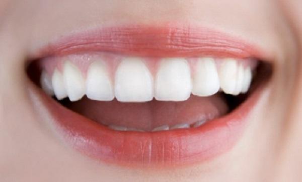 Giải đáp: Trồng răng giả mất thời gian bao lâu? 97
