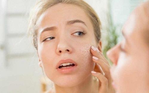 Bí mật về cách dưỡng da mặt tốt nhất Da-kh-c-th-li-n-quan-n-c-c-b-nh-768x480