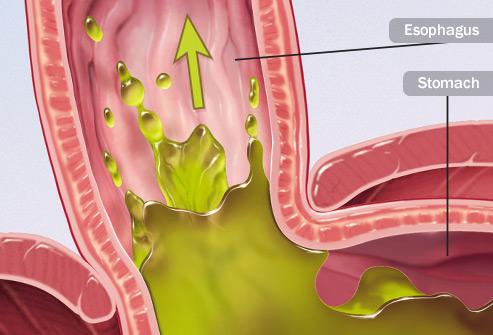 493ss-medical-images-rm-acid-reflux-illustration