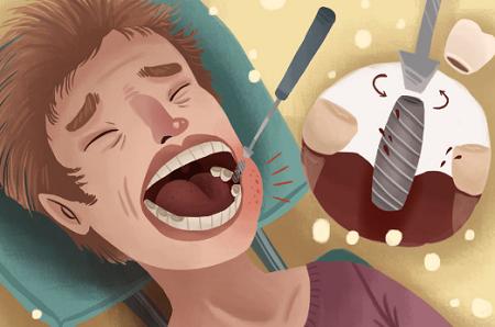 dental-implants-Melbourne