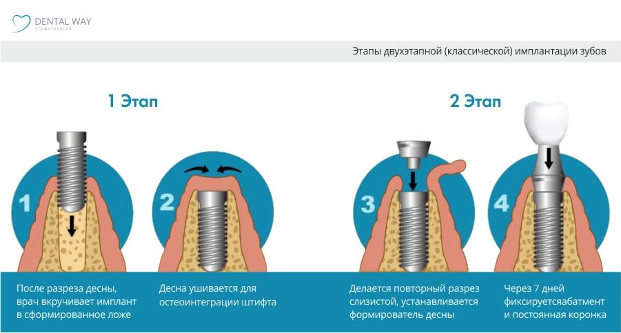 Имплантация 2