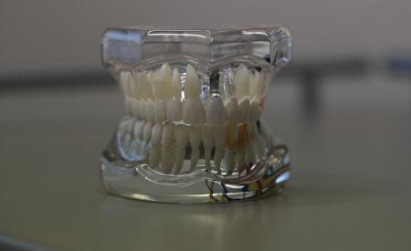 Full-Dentures-Cost