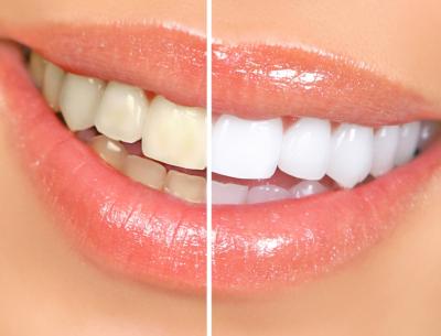 Teeth-Whitening-in-Blacktown