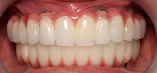 Dental-implants-sydney