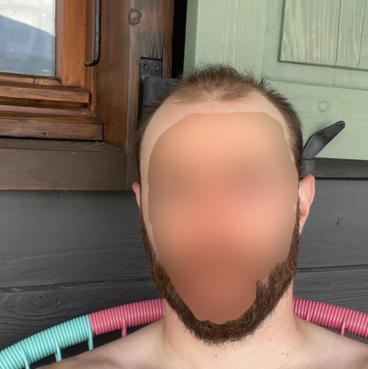 Homme chauve avant complément capillaire