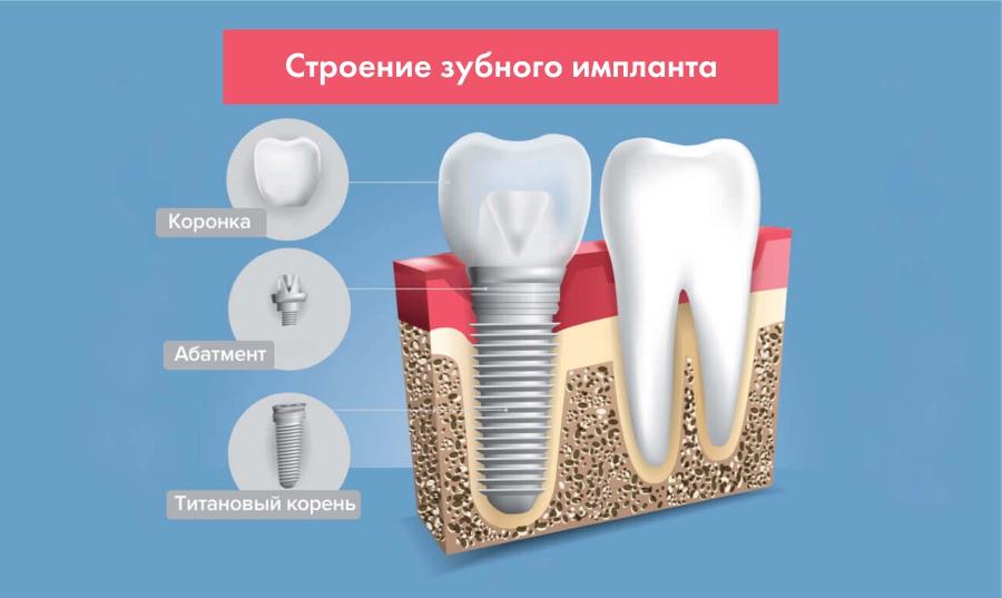 Имплантация зубов 2