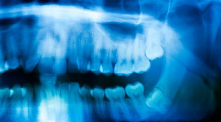 Teeth-Removal
