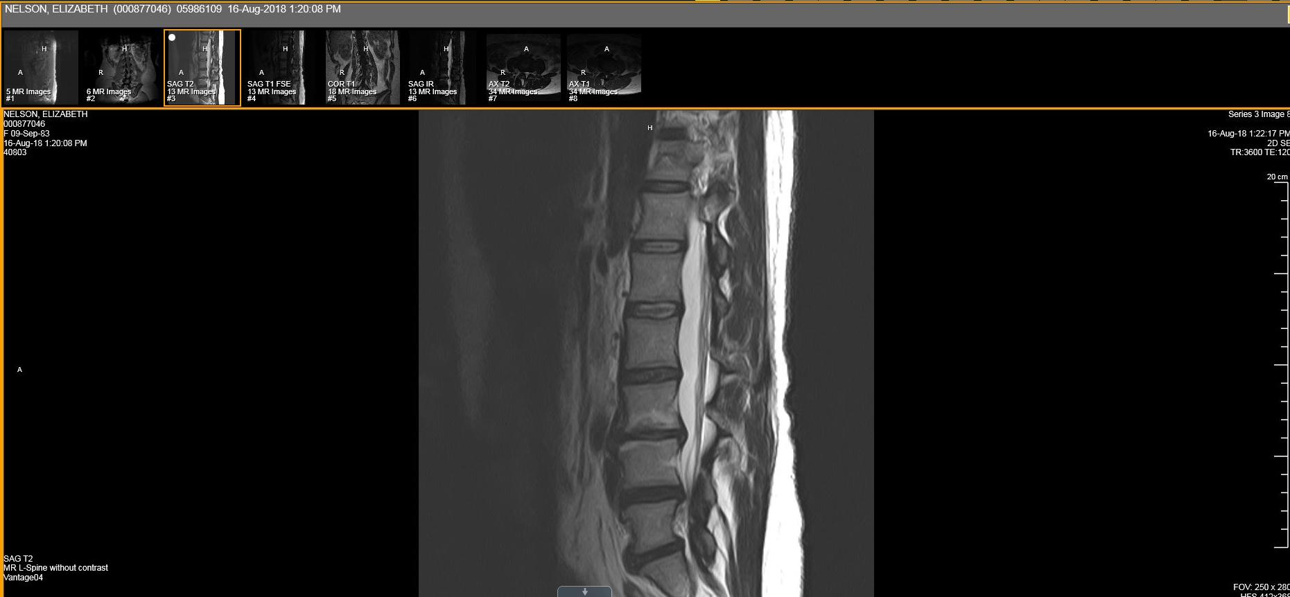 MRI August 2018