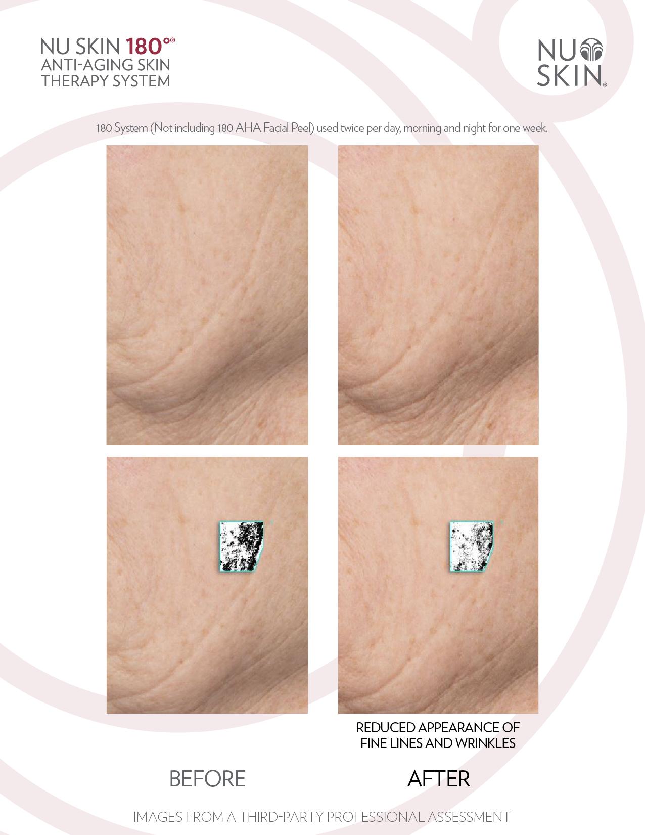 Sistema 180 Nu Skin Terapia Anti-Envejecimiento Mexico Presio
