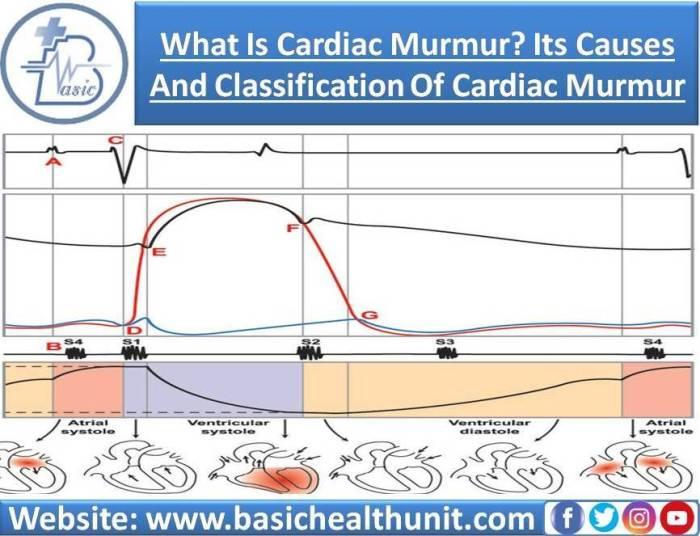 What Is Cardiac Murmur? Its Causes & Classification Of Cardiac Murmur