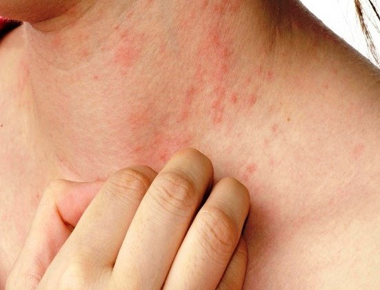 Everything About Allergies, Symptoms and Causes You Need To Know