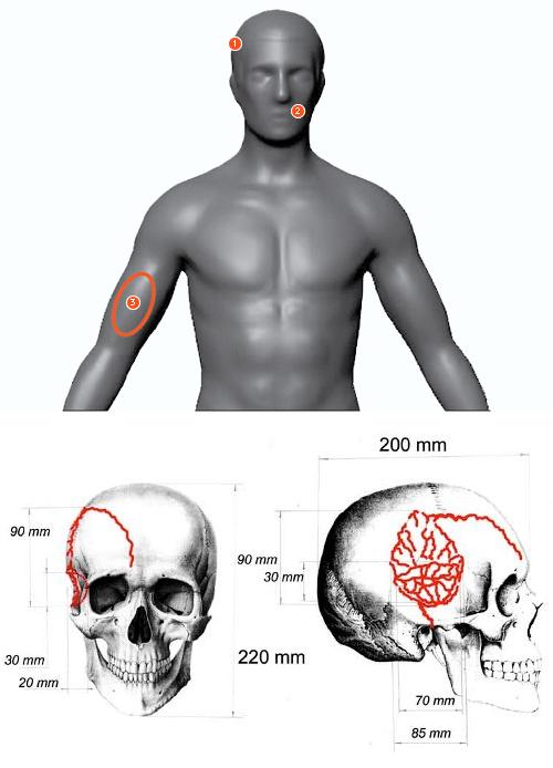 Nikolay-Thibeaux-Brignolle-autopsy-report