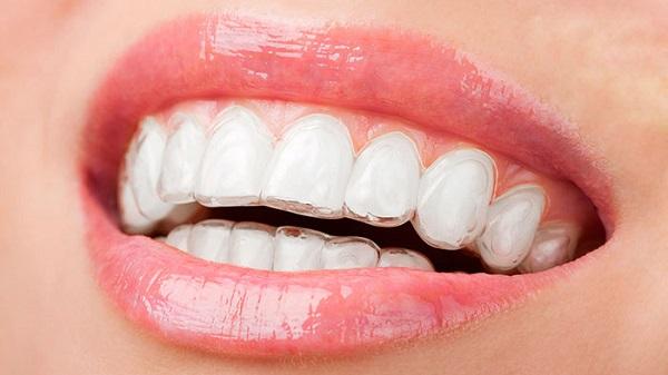 Niềng răng trong suốt mất bao lâu thời gian? 142