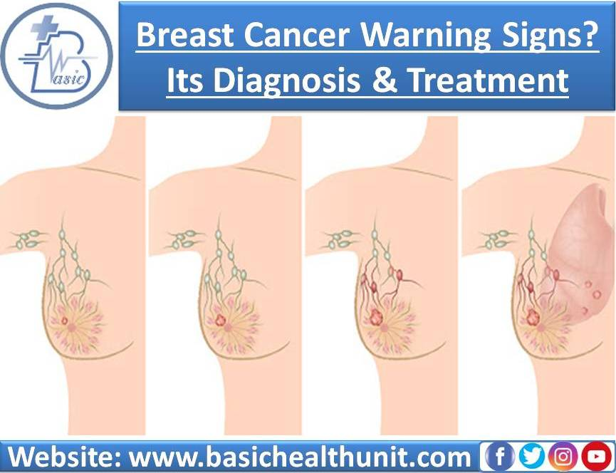 Everything About Breast Cancer Warning Signs? Its Diagnosis & Treatment