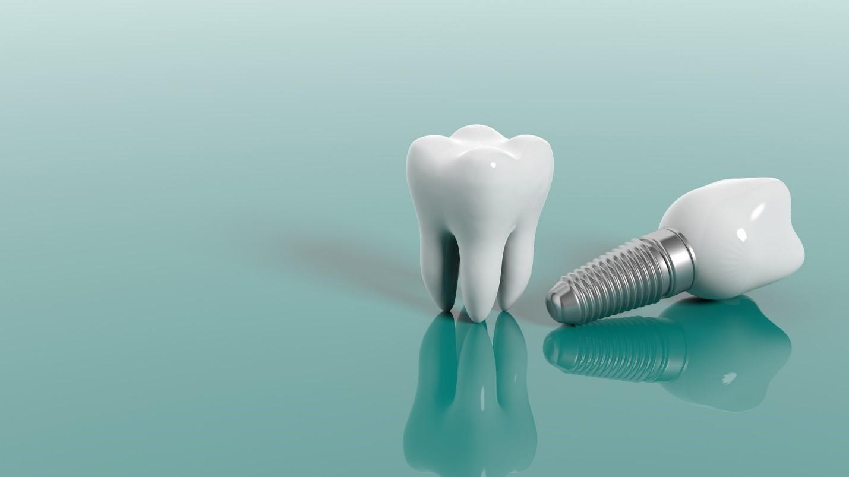 Vancouver-dental-implants2