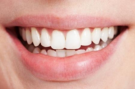 Wisdom-Teeth-Removal-in-Sydney